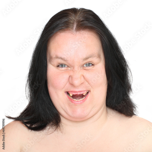 Portrait an ugly woman with missing teeth. Wallpaper Mural