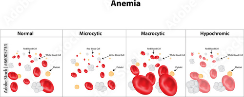 Microcytic, Macrocytic and Hypochromic Anemia Wallpaper Mural