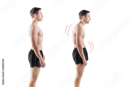 Cuadros en Lienzo Man with impaired posture position defect scoliosis and ideal