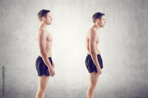 Fotografía  Man with impaired posture position defect scoliosis and ideal