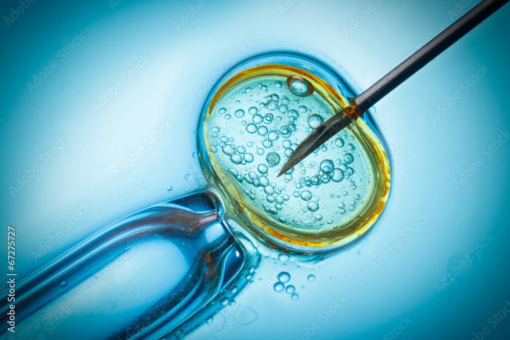 Fototapety, obrazy: In vitro fertilisation, IVF macro concept