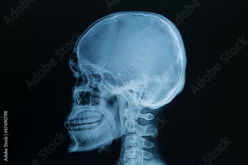 Fotografie, Obraz  skull x-rays image