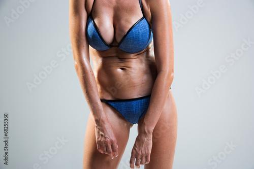 Fotografia, Obraz  tummy cellulite. poor posture.