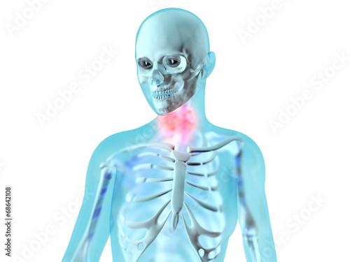 Weibliche Anatomie - Halsschmerzen - Buy this stock illustration and ...