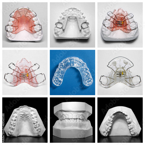 Fotografia  Essix retainer surrounded by orthodontic appliances and models