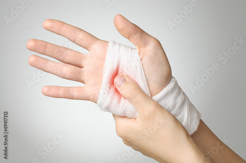 Injured hand with bloody bandage Canvas Print