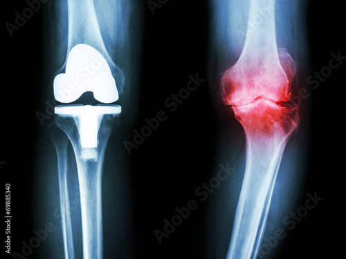 Fotografiet  osteoarthritis knee patient and artificial joint