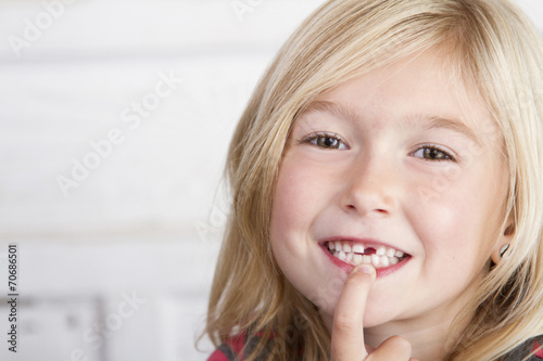 Canvas Print Child missing front tooth