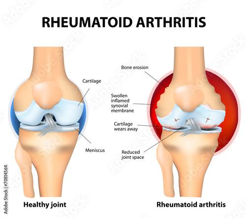 Photo Normal Joint and Rheumatoid Arthritis