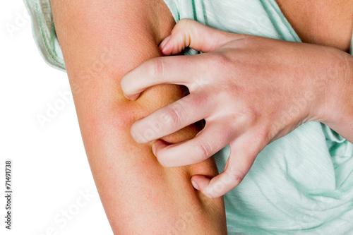 Fotografia  Frau juckt die Haut