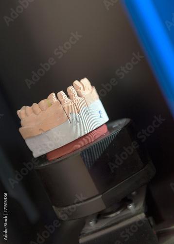 Fotografia, Obraz  Dental prothetic