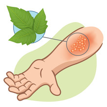 First Aid Arm With Allergies And Rashes Due To Poison Ivy Plant