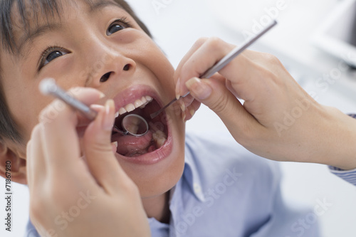 Fotografia  Boy undergoing dental caries check by opening the big mouth