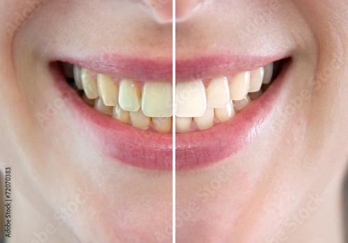 Denti prima e dopo sbiancamento Canvas