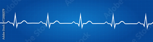 Fotografía  Blueprint Of Normal Electrocardiogram Graphic
