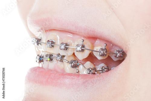 Fotografia  side view of dental braces on teeth close up