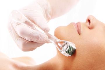 Mezoterapia, mezoterapia mikroigłowa, zabieg kosmetyczny