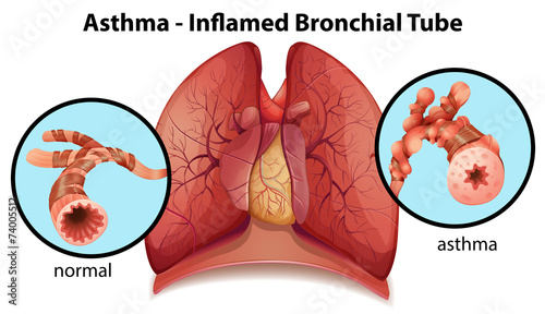 Fototapeta An asthma-inflamed bronchial tube