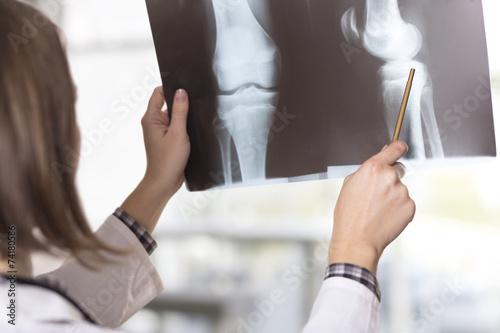 Fotografie, Obraz  X-ray scan