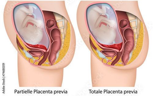 Obraz na plátně placenta previa medical vector illustration