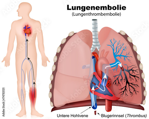 Lungenembolie, pulmonary embolism – kaufen Sie diese Vektorgrafik ...