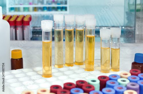 Fotografía  analysis of urine tubes in lab