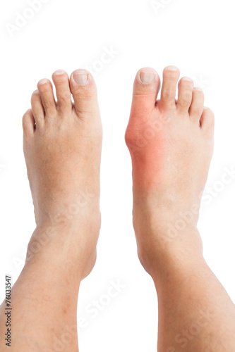 Pair of feet with deformed right toe with gout inflammation. Wall mural