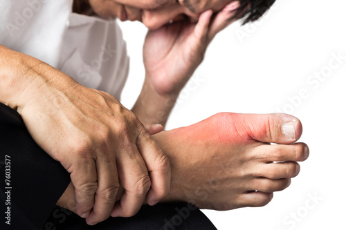 Man with painful and swollen right foot due to gout inflammation Wallpaper Mural
