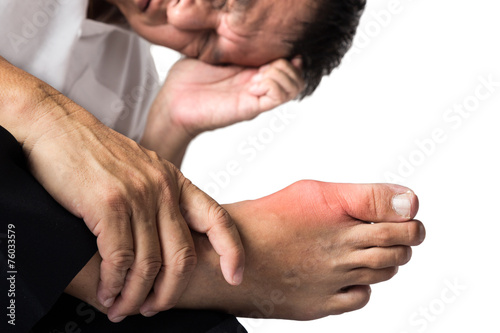 Canvas Print Man with painful and swollen right foot due to gout inflammation