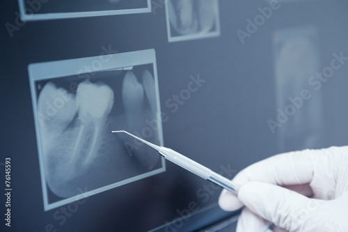 Fotografering  Gloved hand holding dental tool to teeth x-ray