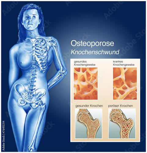 Fotografía  Knochenschwund.Osteoporose