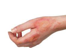 Horrible Burns On Female Hand ...
