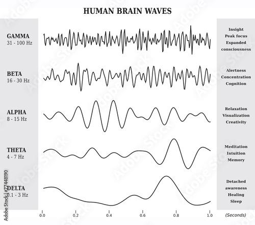 Ondes Cérébrales Humaines Diagramme / Illustration Noir et Blanc Canvas Print