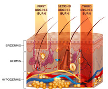 Skin Burn Classification. First, Second And Third Degree Skin Bu