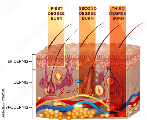 Stampa su Tela Skin burn classification. First, second and third degree skin bu