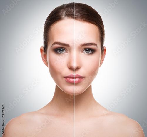 Fototapeta Face before and after retouch obraz na płótnie