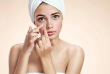 Acne Spot Pimple Spot Skincare...