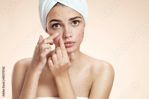 Photo Acne spot pimple spot skincare beauty care girl