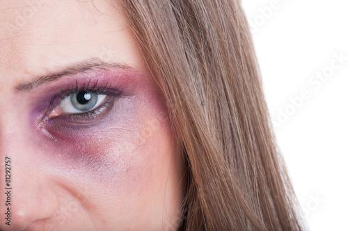 Fényképezés  Black or bruised woman eye