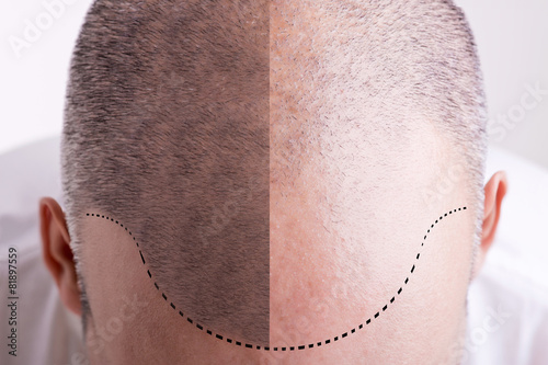Hair Loss - Before and After Fototapet