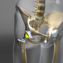 Hüftgelenk Implantat