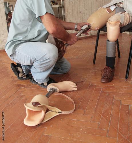 Fotografia  Prosthesis