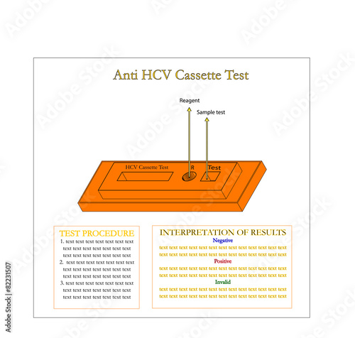 Fotografie, Obraz  Anti Hepatitis C virus cassette for laboratory test,Vector