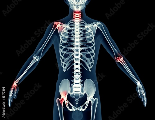 x-ray image of a man isolated on black – kaufen Sie diese ...