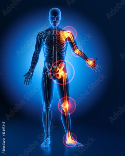 Carta da parati Gelenkschmerzen am gesamten Körper