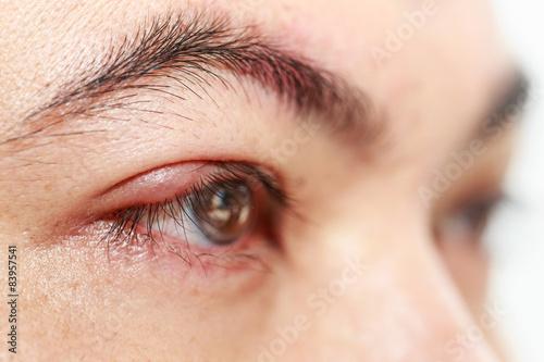 Photo Right upper eye lid abscess stye or hordeolum