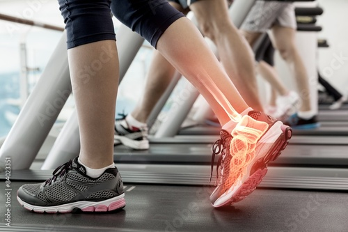 Photo Highlighted ankle of woman on treadmill