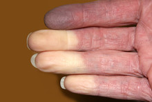 Fingers With Reynauds