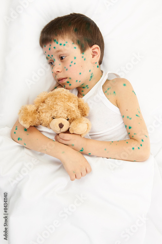 child has the virus on skin #84341140