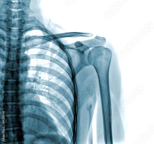 Fotografie, Obraz  Fotografie x-ray rameno